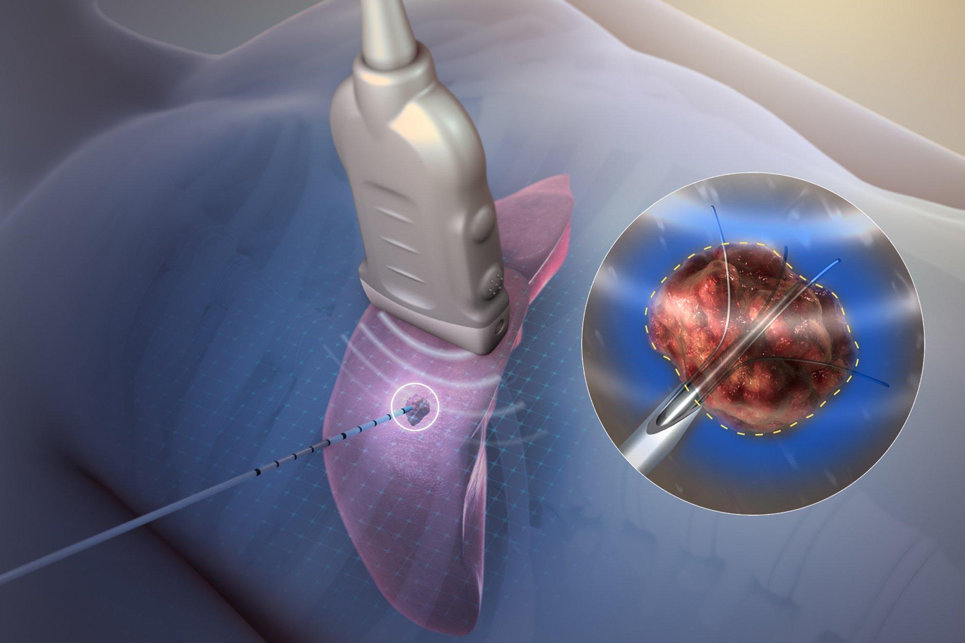 Ablación por radiofrecuencia para tumores