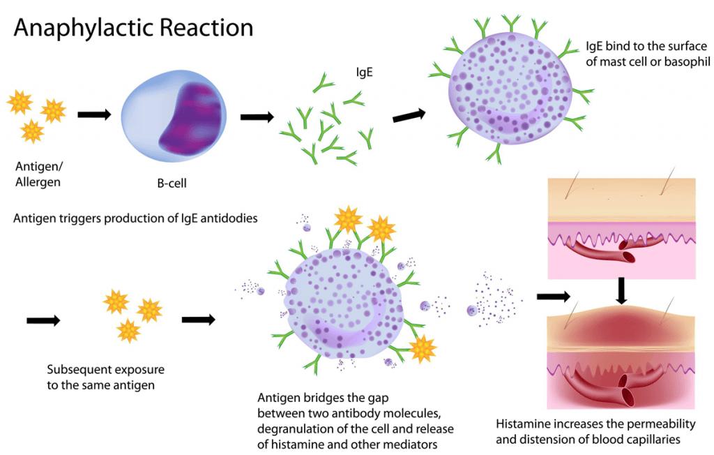 Mecanismo de una reacción alérgica