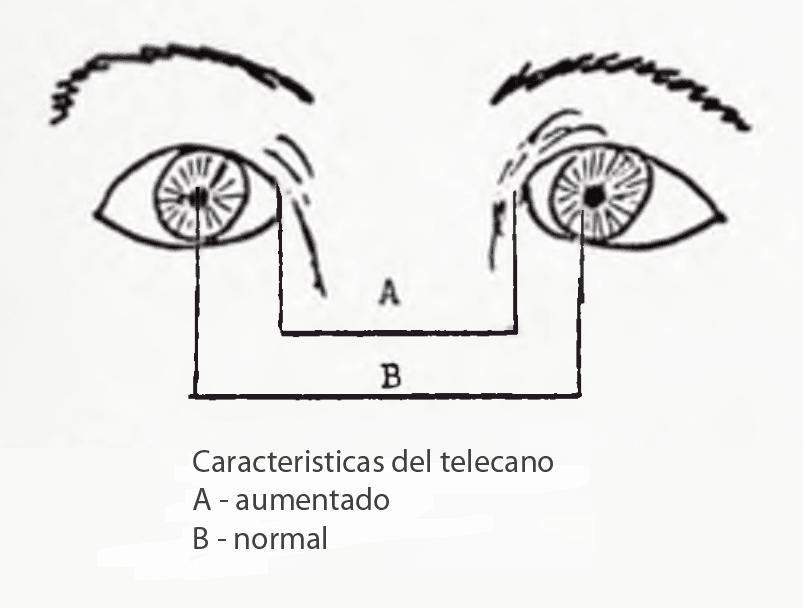 Distancia entre ojos y pupilas en el telecanto