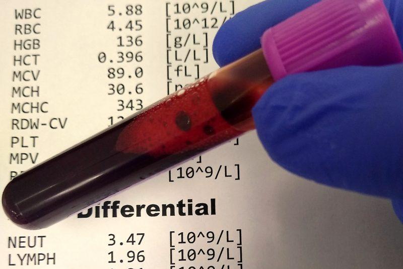Tubo de sangre EDTA para hemograma